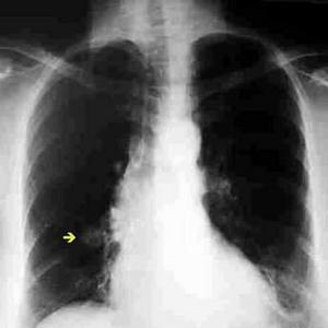 Resultado de imagen para nódulos pulmón